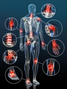 Artrosis. Gráfico cuerpo humano con articulaciones en rojo.